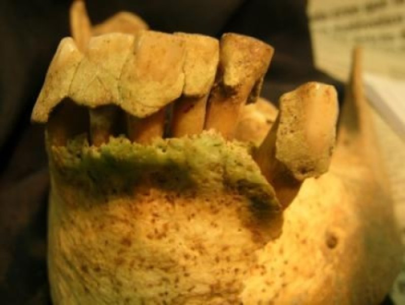 How bad teeth could tell us a great deal about ancient humans.